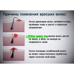 Профилактика и лечение вросших волос