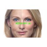 Гликация и старение кожи