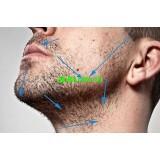 Как устранить раздражение на коже лица у мужчин после бритья?